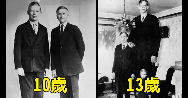 溫柔巨人「10歲長到195公分」從此停不下來 至今無人打破他身高紀錄!